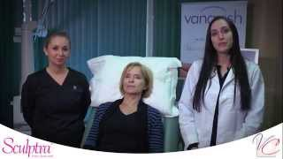 Sculptra™ Collagen Producer - Vein & Cosmetic Center of Tampa Bay Thumbnail