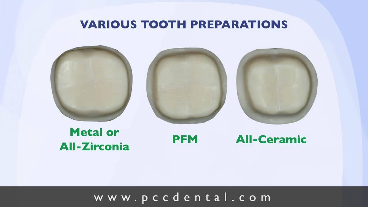 Ask Gordon Crown Tooth Preparation Technique Youtube