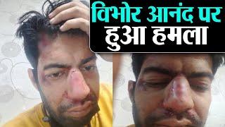 Sushant Singh Rajput case: Lawyer Vibhor Anand पर हमला, खुद तस्वीरे शेयर कर बताई घटना