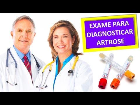 Видео Exame de sangue para reumatismo
