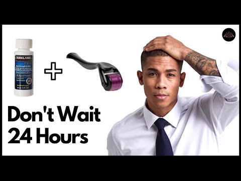 how-long-to-wait-before-applying-minoxidil-after-dermarolling?