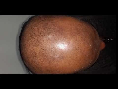 Latest in hair loss & transplant @ Eterno in Kochi,Kerala