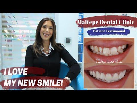 Veneer Treatment in Istanbul/Turkey | Maltepe Dental Clinic