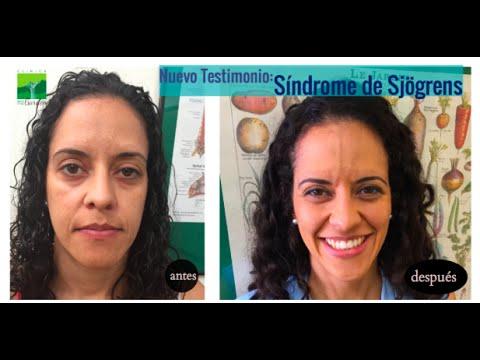 Reversión de Síndrome de Sjögrens