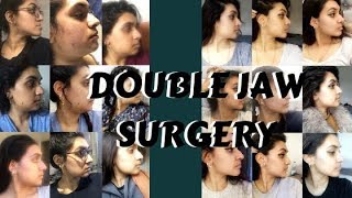 POST 8-WEEKS DOUBLE JAW SURGERY UPDATE + PICTURES |ZARAS WORLD|