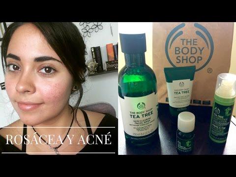 Tratamiento contra el acné y la rosácea    Compras The Body Shop    Primera Parte    Cruelty Free