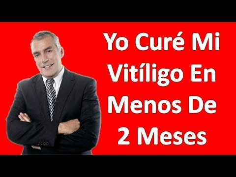 3 Fáciles Remedios Para El Vitiligo Tratamiento Natural - Vitiligo La Cura Permanente En 2 Meses