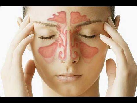 Гайморит. Симптомы, признаки и причины гайморита. Лечение