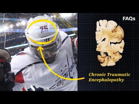 CTE: Why this brain disease is more common than you think