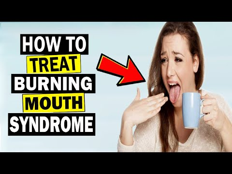 How To Get Rid Of Burning Mouth Syndromes || Home Remedies For Burning Mouth Syndromes