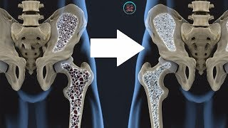 12-foods-that-treat-osteoporosis-and-promote-strong-bones