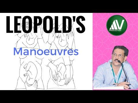 Leopold's Manoeuvres