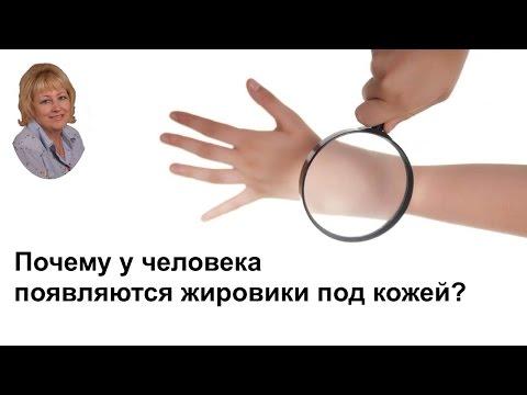 Почему у человека появляются жировики под кожей?