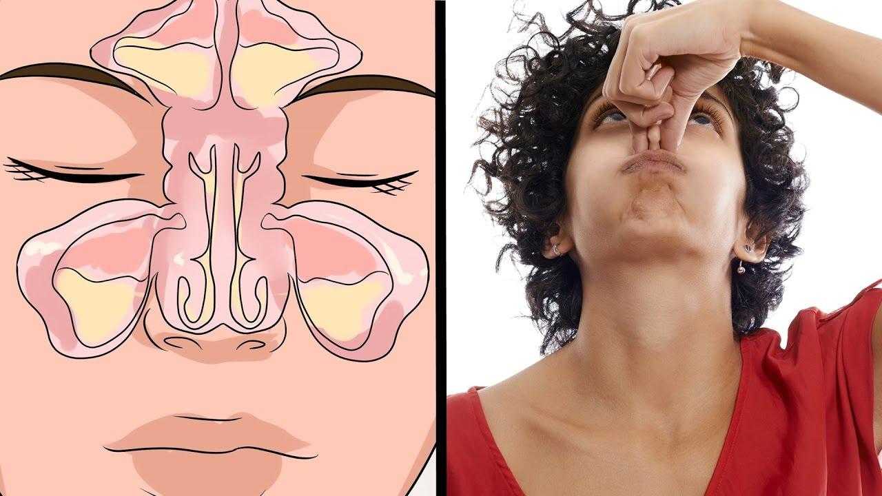 Como eliminar la congestion nasal de forma rapida