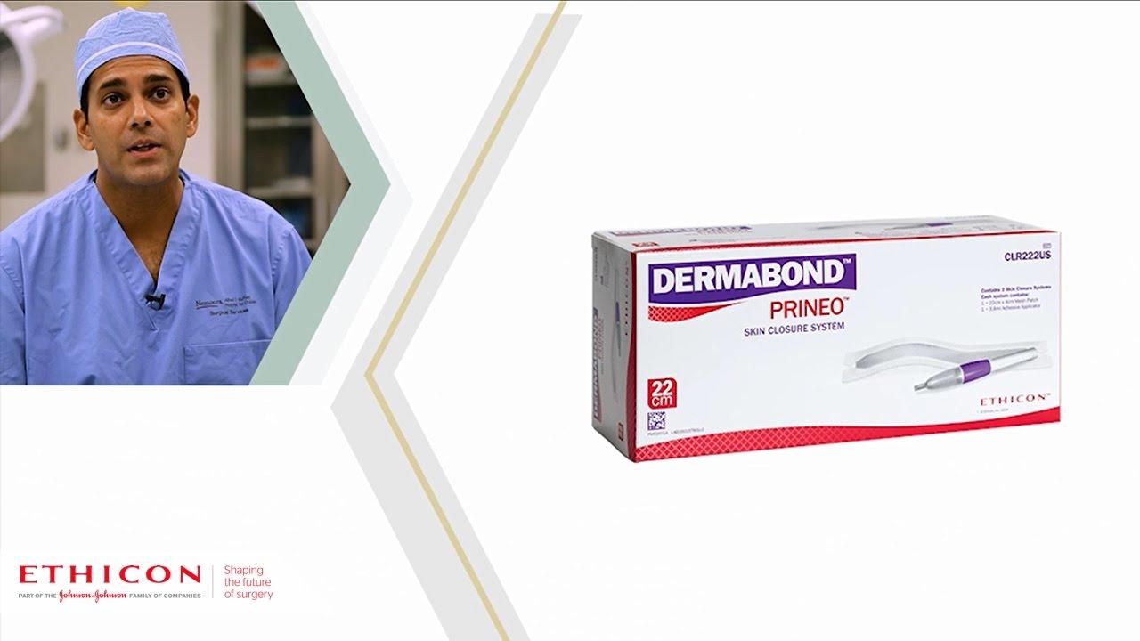 Dermabond Prineo Skin Closure System 22cm In Spine Deformity