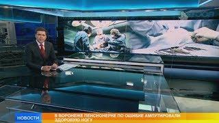 Пенсионерке по ошибке ампутировали здоровую ногу в Воронеже