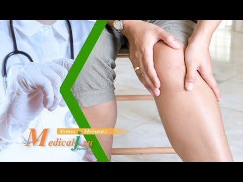 Симптомы облитерирующего атеросклероза ног