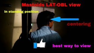 Mastoids LAT- OBL view, ANATOMY AND PHYSIOLOGY PART-23