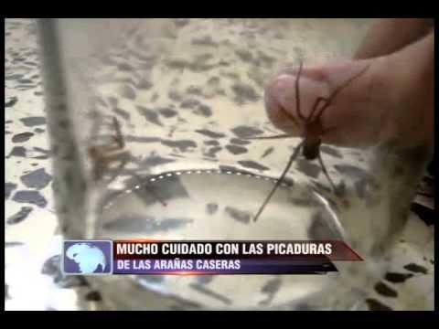 Video remedios caseros y naturales para la picadura de ara a - Eliminar aranas en casa ...