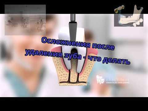 Болит язык после удаления зуба что делать