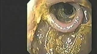 Dr Hiromi Shinya --Colon Cleanse Using Kangen Water