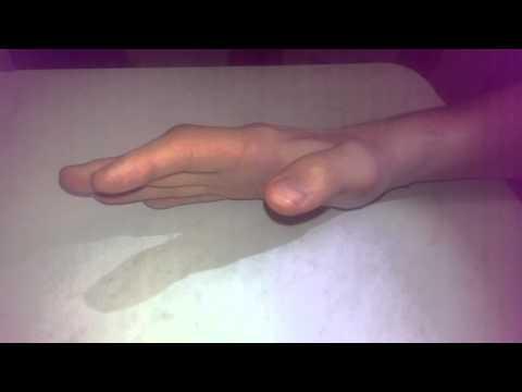 после операции по восстановлению сухожилий сгибателей 2го пальца кисти (6 мес)