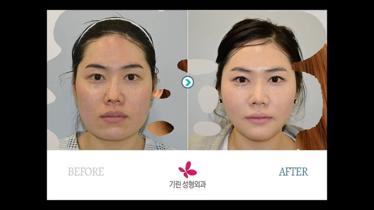 Cosmetic & Plastic Surgeon Newcastle: Avery Plastic Surgery