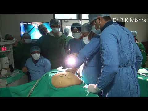 Laparoscopic Repair of Para Umbilical Hernia Fully Explained