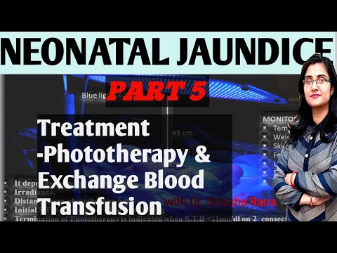 Neonatal Jaundice -Treatment- Phototherapy & Exchange Transfusion PART -5 By Dr Shiksha Rana #BAMS