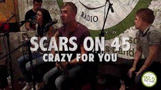"Scars On 45 perform ""Crazy For You"" in the River Music Hall"