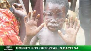 TVC Breakfast 6th October 2017 | Monkey Pox Outbreak in Bayelsa
