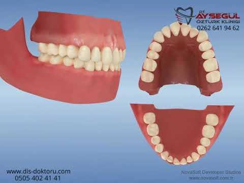Ortodonti: Class I dental dizilim bozukluğunun düzeltilmesi