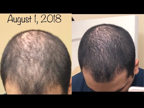 """""""For Hims"""" Review (Hairloss Treatment) 2018"""