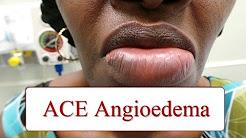 ACE Inhibitor Associated Angioedema