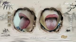 [健康之路]不在心上的心脏病 肝郁人群舌象有肝胆经瘀滞的表现| CCTV科教