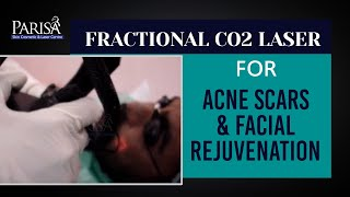 FRACTIONAL CO2 LASER FOR ACNE SCARS & FACIAL REJUVENATION : Dr Ashima Goel ,Chandigarh INDIA Thumbnail