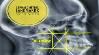 Cephalometric Landmarks and their definition