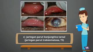 Step by step description of how to perform an entropion repair with a buried LTS and simple buried e.