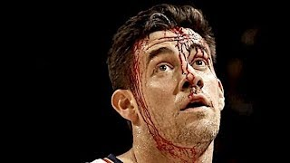 "NBA ""Bloodiest"" Injuries"