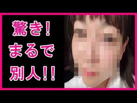 堀ちえみ韓国の美容整形レーザー治療に高須クリニック院長が苦言