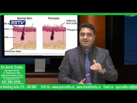 Psoriasis Treatment in Brampton, Canada. Ayurvedic Skin Treatment Centre- AYUR - SUDHA