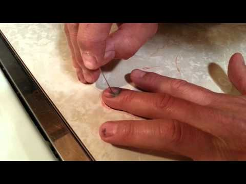 How to drain blood under your nail! @ home.