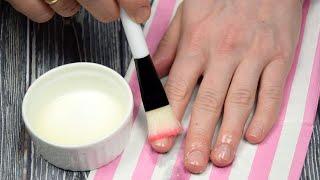 Как устранить ломкость ногтей и ускорить их рост Два ингредиента к безупречным ноготочкам