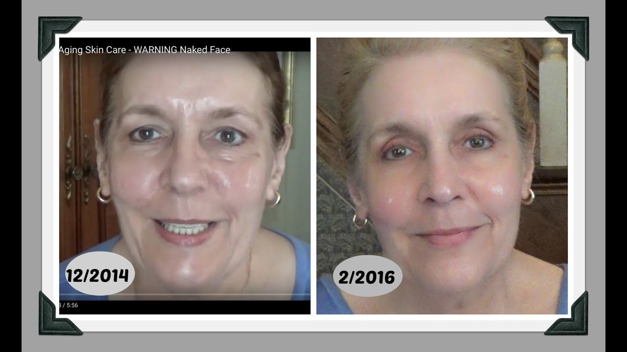 Anti Aging Skincare For Men Amp Women 18 Month Update