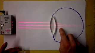 Optometry 102 | Finding Refractive Power (Diopters) Worked Examples | Doc Physics