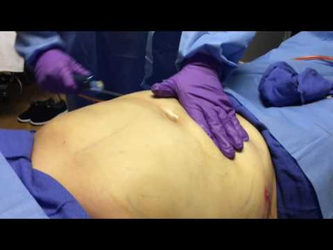Doctor Mountcastle Performs Liposuction Explained In English And Spanish