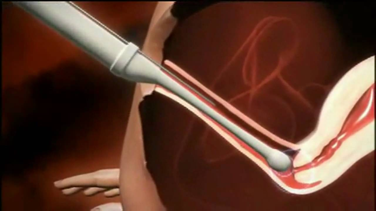 Sperm downer video