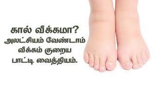 கால் வீக்கம் உடனே நீங்க | home remedies for swelling of leg