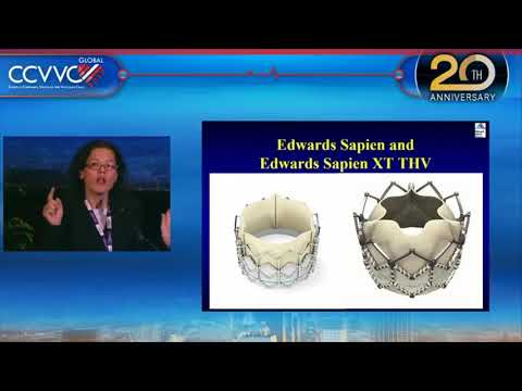 TAVR for All Aortic Stenosis in 2017+