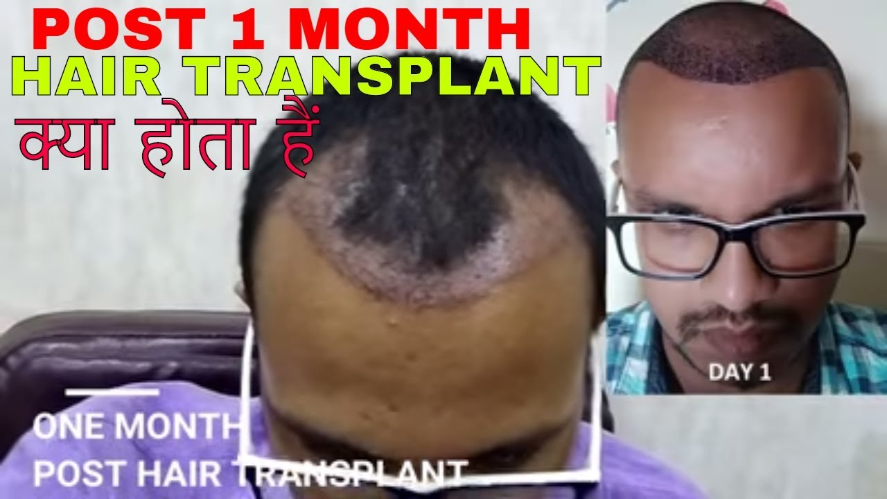 Front View Before Hair Transplant